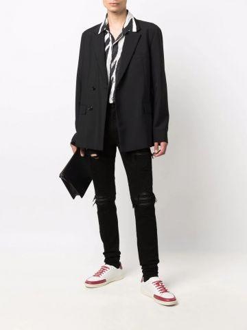 Black MX1 skinny jeans